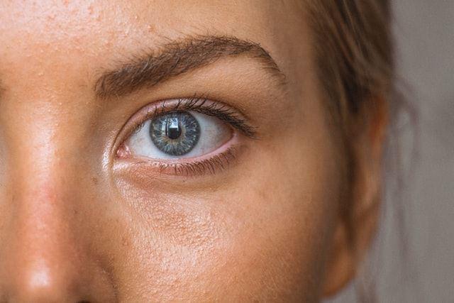 tratamiento piel grasa acne